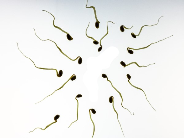 Concentration de spermatozoïde, sperme transparent